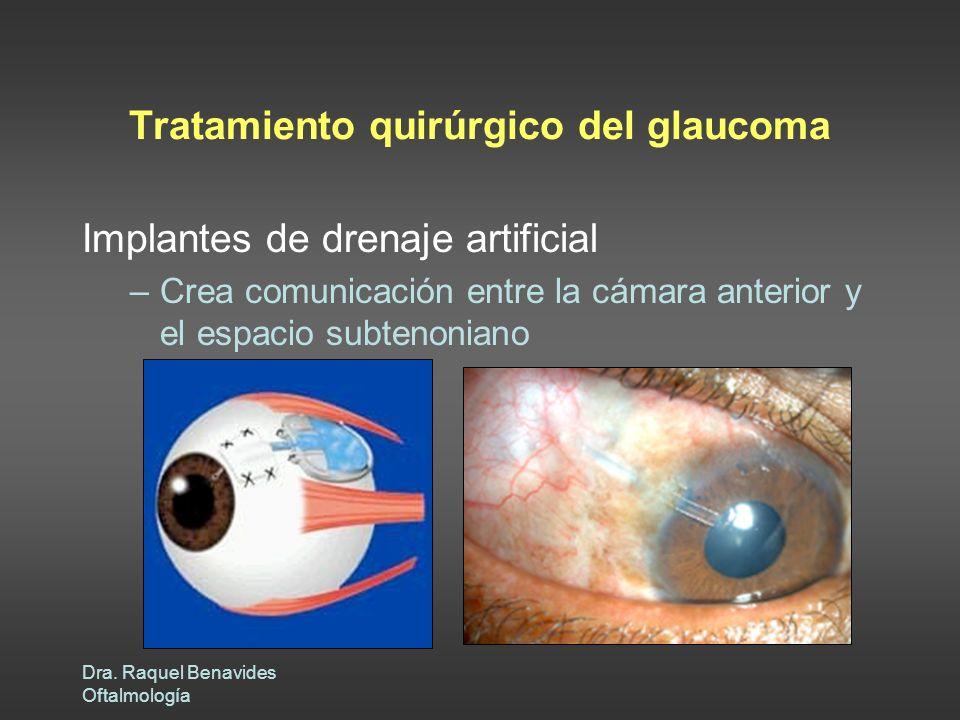 Dra. Raquel Benavides Oftalmología Tratamiento quirúrgico del glaucoma Implantes de drenaje artificial –Crea comunicación entre la cámara anterior y e