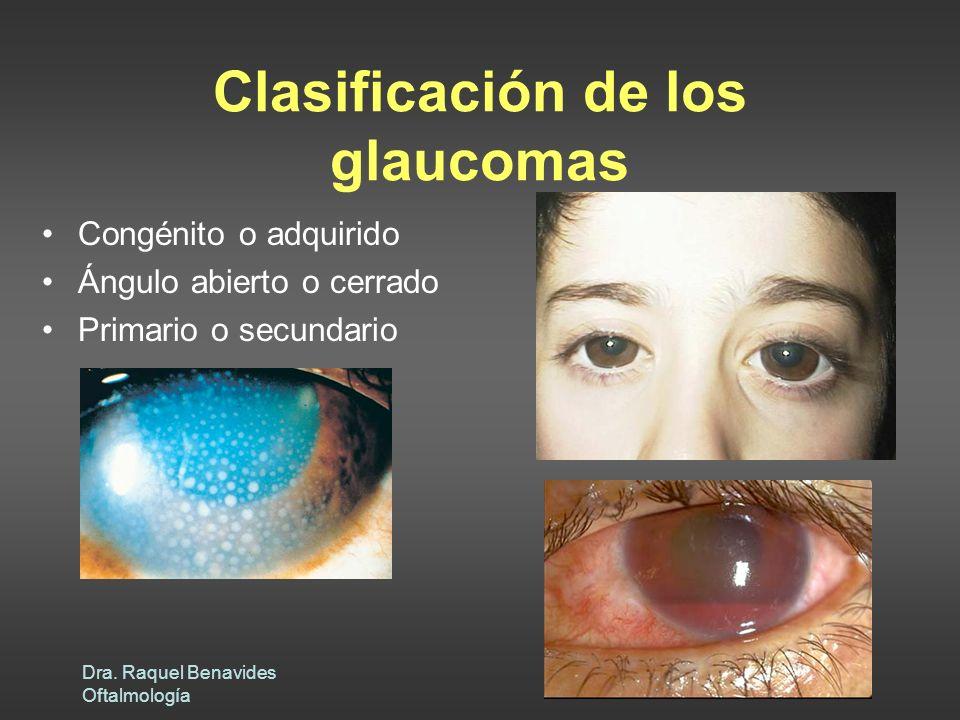 Dra. Raquel Benavides Oftalmología Clasificación de los glaucomas Congénito o adquirido Ángulo abierto o cerrado Primario o secundario