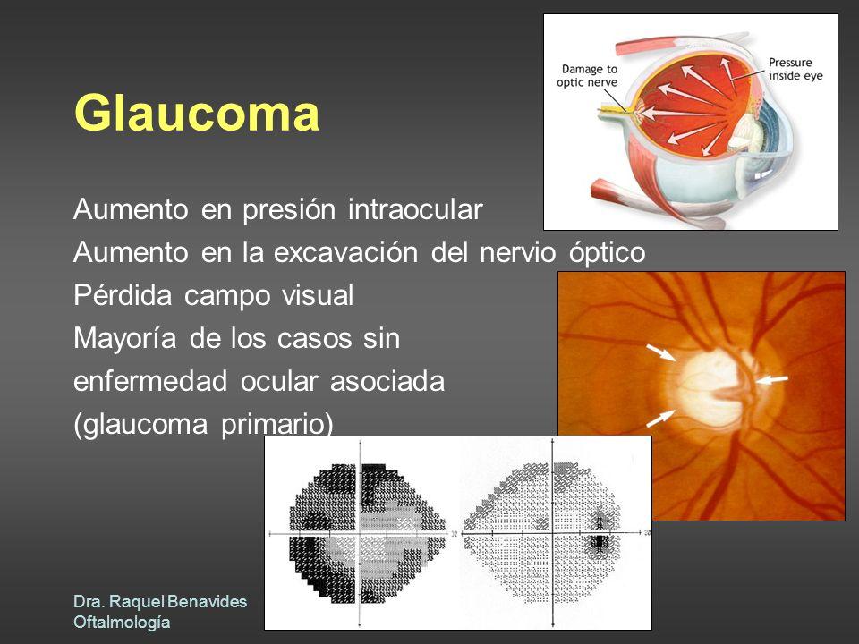 Dra. Raquel Benavides Oftalmología Glaucoma Aumento en presión intraocular Aumento en la excavación del nervio óptico Pérdida campo visual Mayoría de