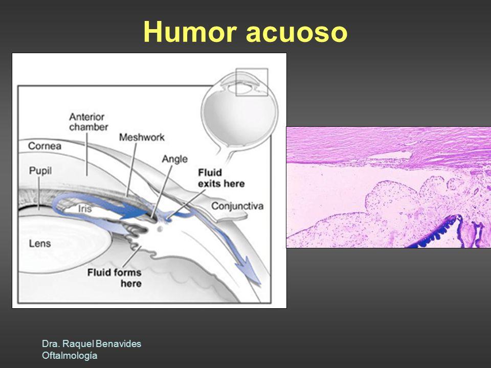 Dra. Raquel Benavides Oftalmología Humor acuoso