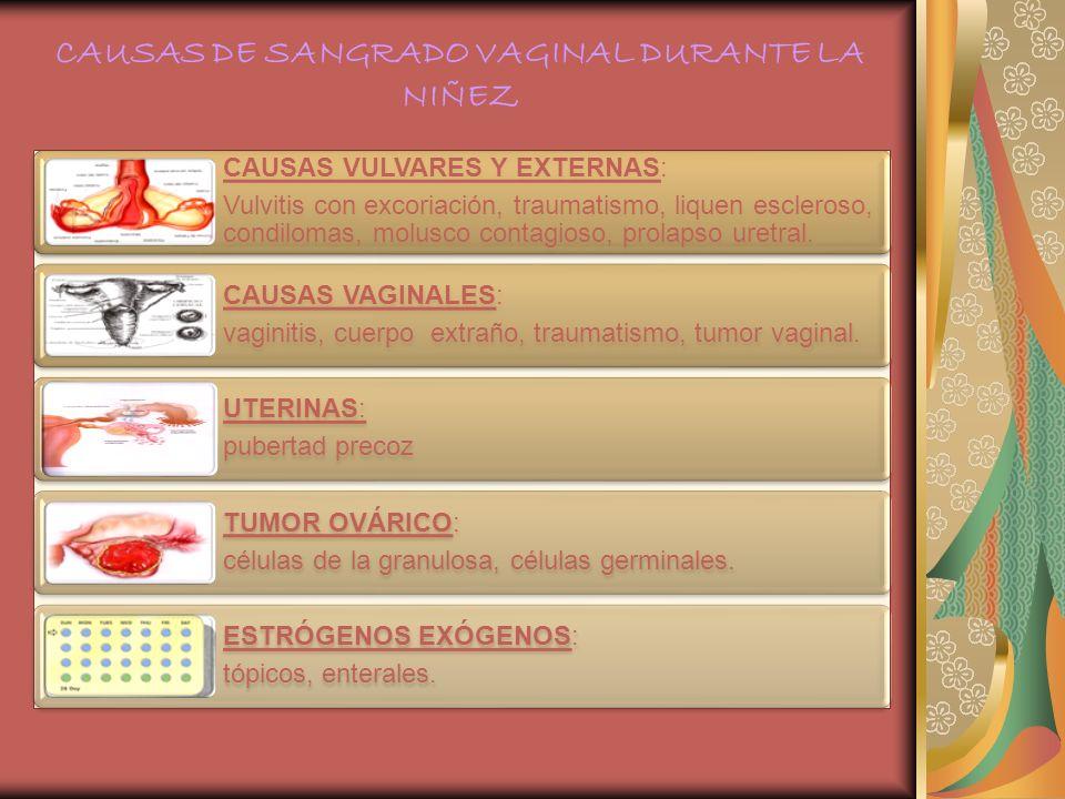CAUSAS DE SANGRADO VAGINAL DURANTE LA NIÑEZ CAUSAS VULVARES Y EXTERNAS: Vulvitis con excoriación, traumatismo, liquen escleroso, condilomas, molusco c
