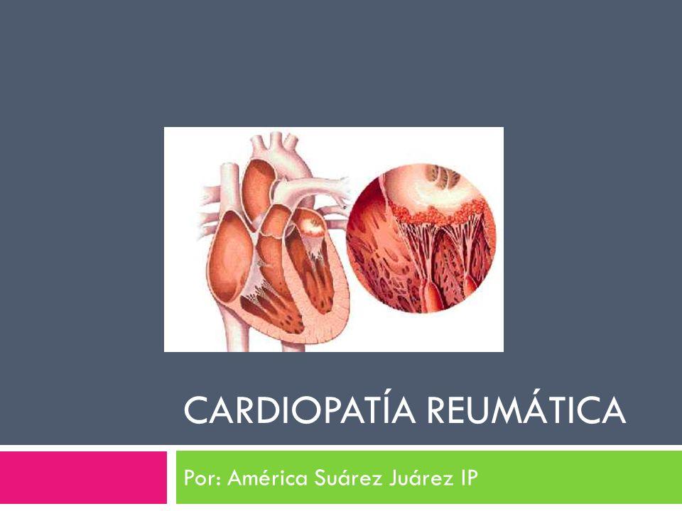 CARDIOPATÍA REUMÁTICA Por: América Suárez Juárez IP