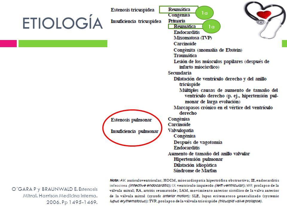 ETIOLOGÍA 1a O´GARA P y BRAUNWALD E. Estenosis Mitral. Harrison Medicina Interna. 2006. Pp 1495-1469.