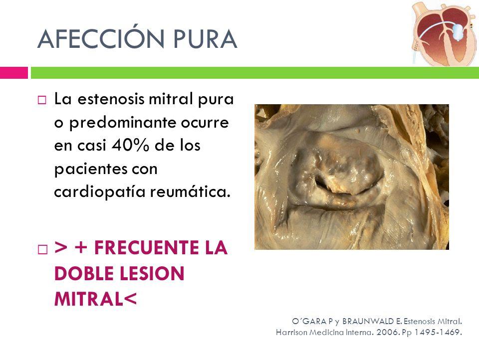 AFECCIÓN PURA La estenosis mitral pura o predominante ocurre en casi 40% de los pacientes con cardiopatía reumática. > + FRECUENTE LA DOBLE LESION MIT