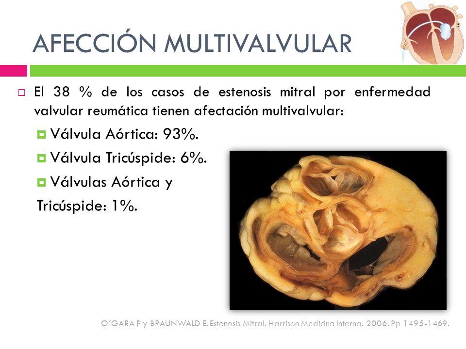 AFECCIÓN MULTIVALVULAR El 38 % de los casos de estenosis mitral por enfermedad valvular reumática tienen afectación multivalvular: Válvula Aórtica: 93