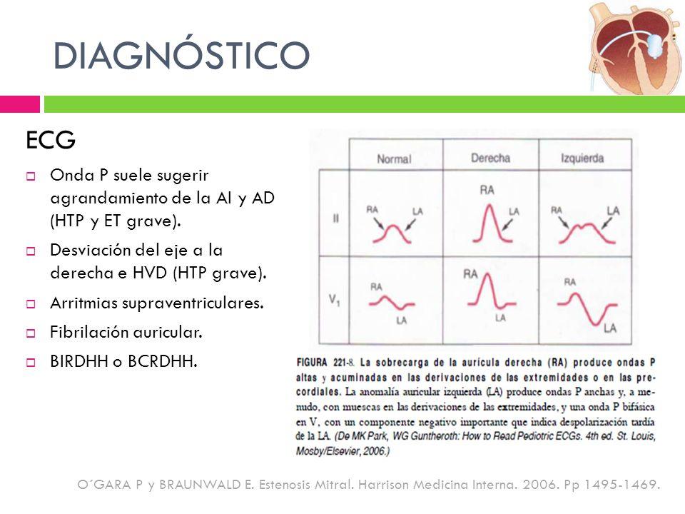 DIAGNÓSTICO ECG Onda P suele sugerir agrandamiento de la AI y AD (HTP y ET grave). Desviación del eje a la derecha e HVD (HTP grave). Arritmias suprav