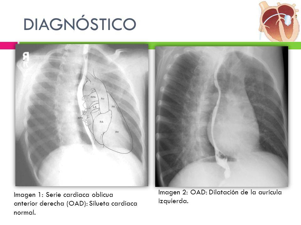 DIAGNÓSTICO Imagen 2: OAD: Dilatación de la aurícula izquierda. Imagen 1: Serie cardiaca oblicua anterior derecha (OAD): Silueta cardiaca normal.