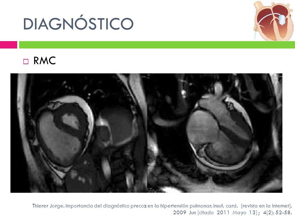 DIAGNÓSTICO RMC Thierer Jorge. Importancia del diagnóstico precoz en la hipertensión pulmonar. Insuf. card. [revista en la Internet]. 2009 Jun [citado