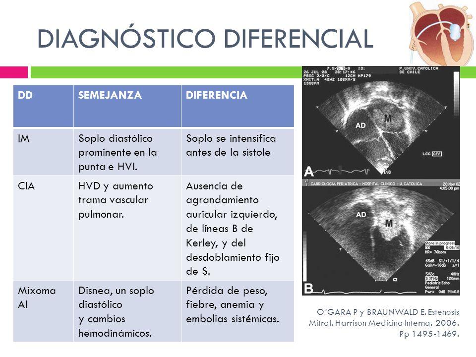 DIAGNÓSTICO DIFERENCIAL DDSEMEJANZADIFERENCIA IMSoplo diastólico prominente en la punta e HVI. Soplo se intensifica antes de la sístole CIAHVD y aumen