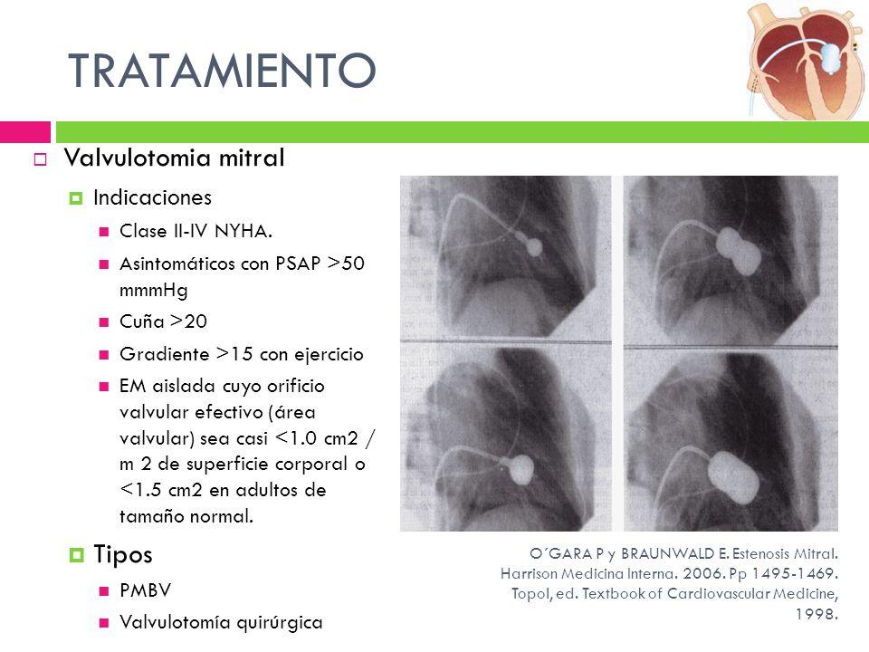 Valvulotomia mitral Indicaciones Clase II-IV NYHA. Asintomáticos con PSAP >50 mmmHg Cuña >20 Gradiente >15 con ejercicio EM aislada cuyo orificio valv