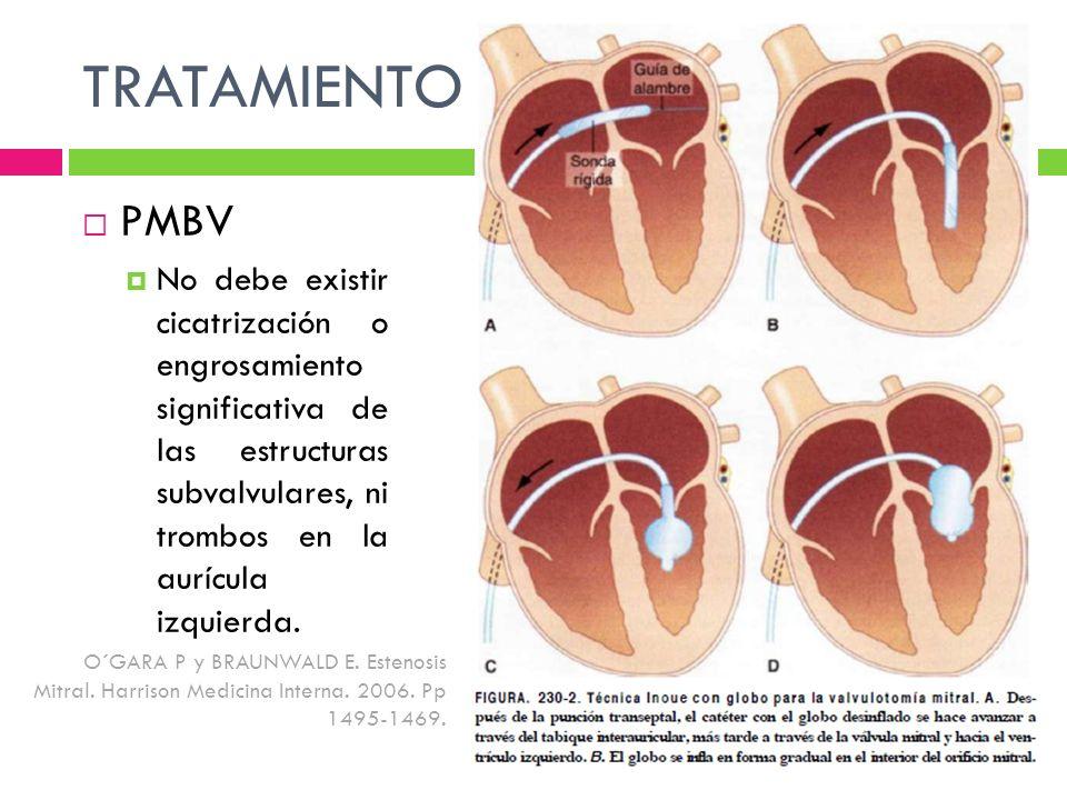 TRATAMIENTO PMBV No debe existir cicatrización o engrosamiento significativa de las estructuras subvalvulares, ni trombos en la aurícula izquierda. O´