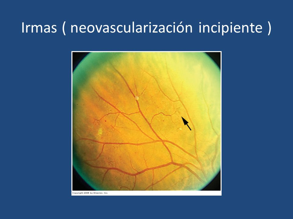 Irmas ( neovascularización incipiente )