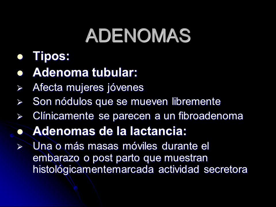 ADENOMAS Tipos: Tipos: Adenoma tubular: Adenoma tubular: Afecta mujeres jóvenes Afecta mujeres jóvenes Son nódulos que se mueven libremente Son nódulos que se mueven libremente Clínicamente se parecen a un fibroadenoma Clínicamente se parecen a un fibroadenoma Adenomas de la lactancia: Adenomas de la lactancia: Una o más masas móviles durante el embarazo o post parto que muestran histológicamentemarcada actividad secretora Una o más masas móviles durante el embarazo o post parto que muestran histológicamentemarcada actividad secretora