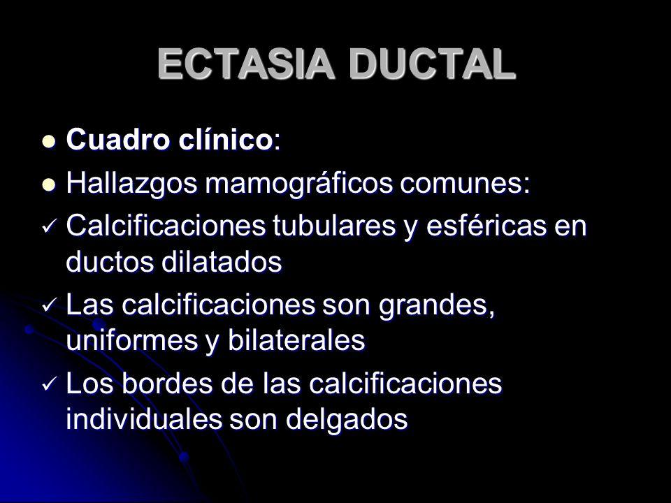 ECTASIA DUCTAL Cuadro clínico: Cuadro clínico: Hallazgos mamográficos comunes: Hallazgos mamográficos comunes: Calcificaciones tubulares y esféricas en ductos dilatados Calcificaciones tubulares y esféricas en ductos dilatados Las calcificaciones son grandes, uniformes y bilaterales Las calcificaciones son grandes, uniformes y bilaterales Los bordes de las calcificaciones individuales son delgados Los bordes de las calcificaciones individuales son delgados