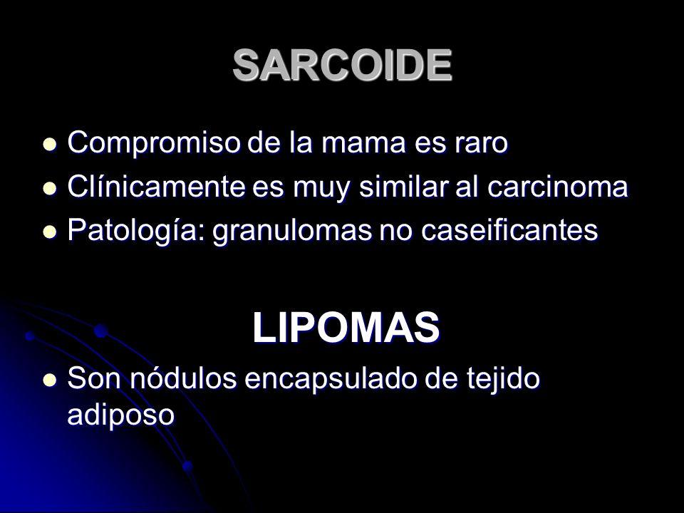 SARCOIDE Compromiso de la mama es raro Compromiso de la mama es raro Clínicamente es muy similar al carcinoma Clínicamente es muy similar al carcinoma Patología: granulomas no caseificantes Patología: granulomas no caseificantes LIPOMAS LIPOMAS Son nódulos encapsulado de tejido adiposo Son nódulos encapsulado de tejido adiposo