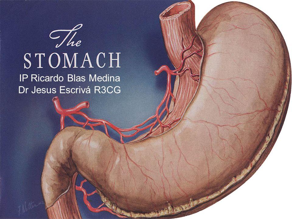 Ulceras El patrón y la distribución de la gastritis se correlaciona con el riesgo de secuela Los pacientes con gastritis antrales (+común) son predispuestos a ulceras duodenales, mientras que las gastritis corporales y atroficas multifocales están predispuestas a ulceras gastricas, atrofia, metaplasia intestinal y cancer.