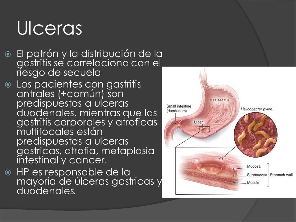 Ulceras El patrón y la distribución de la gastritis se correlaciona con el riesgo de secuela Los pacientes con gastritis antrales (+común) son predisp