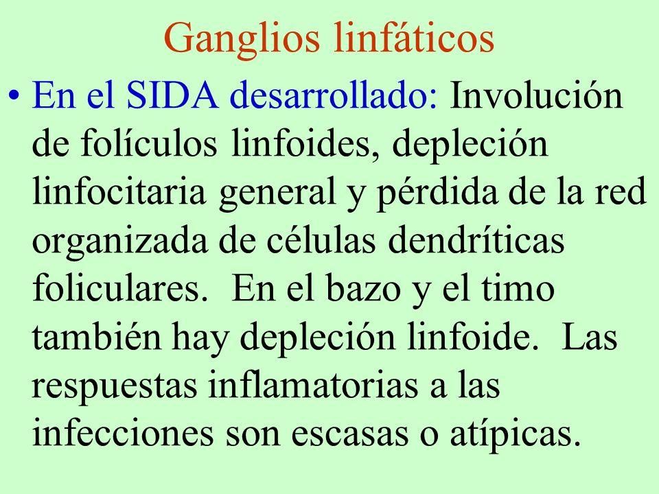 Ganglios linfáticos En el SIDA desarrollado: Involución de folículos linfoides, depleción linfocitaria general y pérdida de la red organizada de célul