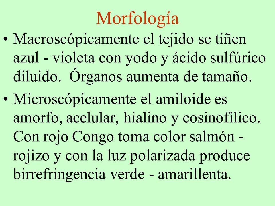 Morfología Macroscópicamente el tejido se tiñen azul - violeta con yodo y ácido sulfúrico diluido. Órganos aumenta de tamaño. Microscópicamente el ami