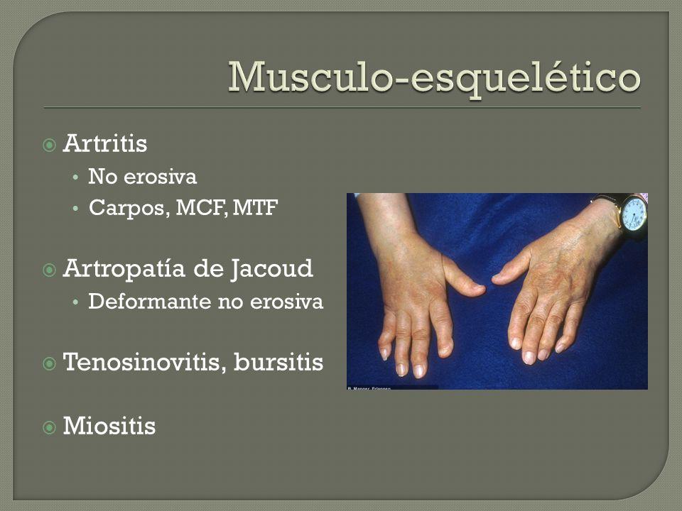 Artritis No erosiva Carpos, MCF, MTF Artropatía de Jacoud Deformante no erosiva Tenosinovitis, bursitis Miositis