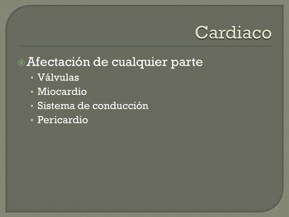 Afectación de cualquier parte Válvulas Miocardio Sistema de conducción Pericardio