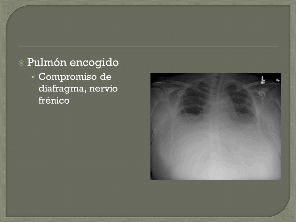 Pulmón encogido Compromiso de diafragma, nervio frénico
