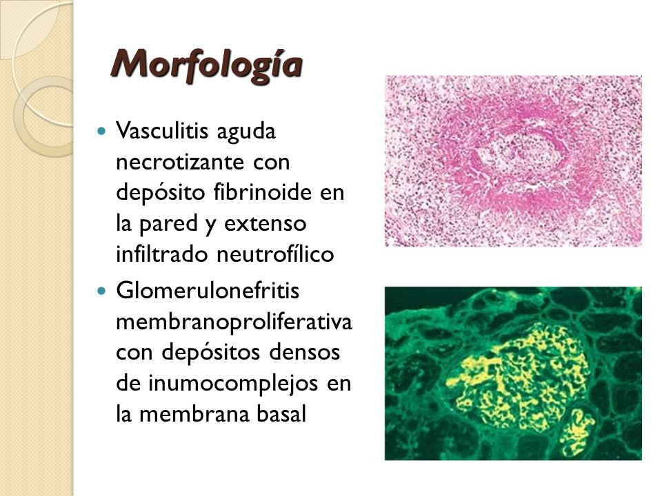 Morfología Vasculitis aguda necrotizante con depósito fibrinoide en la pared y extenso infiltrado neutrofílico Glomerulonefritis membranoproliferativa
