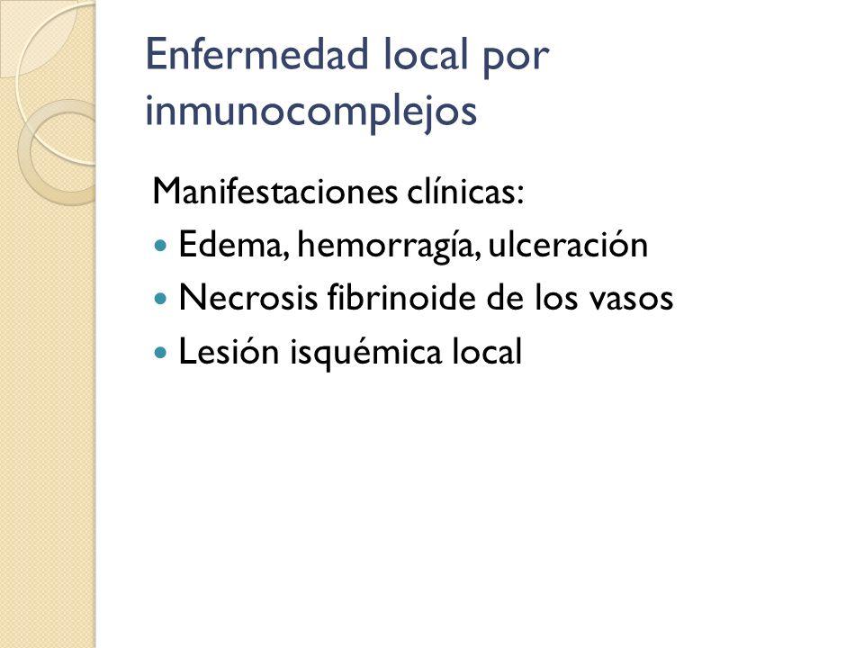 Enfermedad local por inmunocomplejos Manifestaciones clínicas: Edema, hemorragía, ulceración Necrosis fibrinoide de los vasos Lesión isquémica local