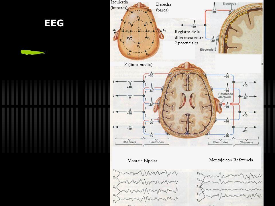 Factores de riesgo de desarrollar Epilepsia Antecedentes familiares de epilepsia Anomalías del neurodesarrollo tempranas C. F. complejas