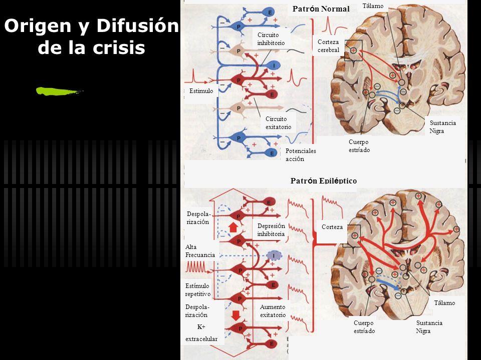 Convulsión Alteración paroxística de la actividad motora y/o de la conducta tras una actividad eléctrica anormal en el cerebro Nelson Tratado de Pedia