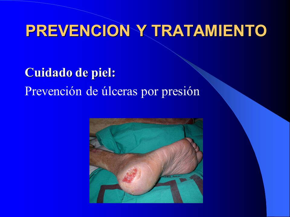 PREVENCION Y TRATAMIENTO Cuidado de piel: Prevención de úlceras por presión