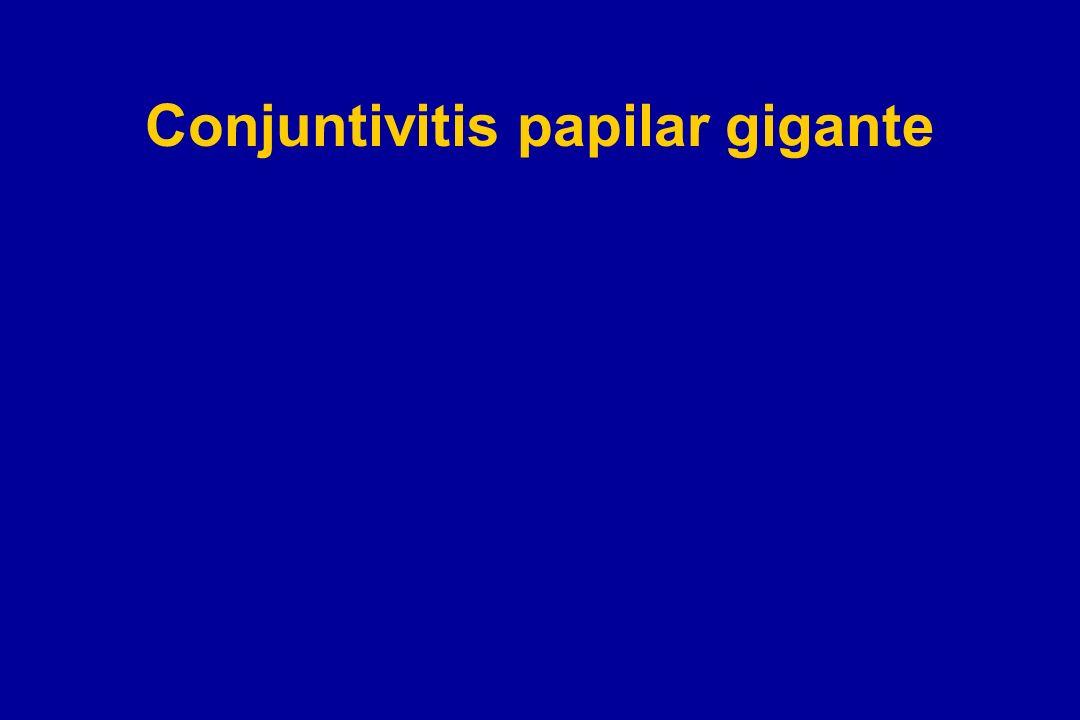 Conjuntivitis papilar gigante