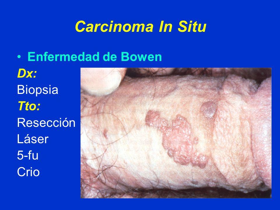 Carcinoma In Situ Eritroplastia de Queyrat Dx: Biopsia Tto: Resección Láser 5-fu Crio
