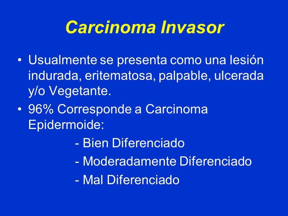 Carcinoma Invasor Diseminación: Local o Linfática
