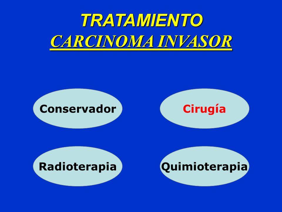 Carcinoma Invasor Lesiones de Prepucio: Circuncisión Penectomía Parcial: -Glande -Cuerpo 1/3 Distal -Margen Quirúrgico libre de 2 cm.
