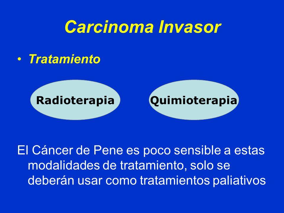 Otros Tipos Histológicos Melanoma