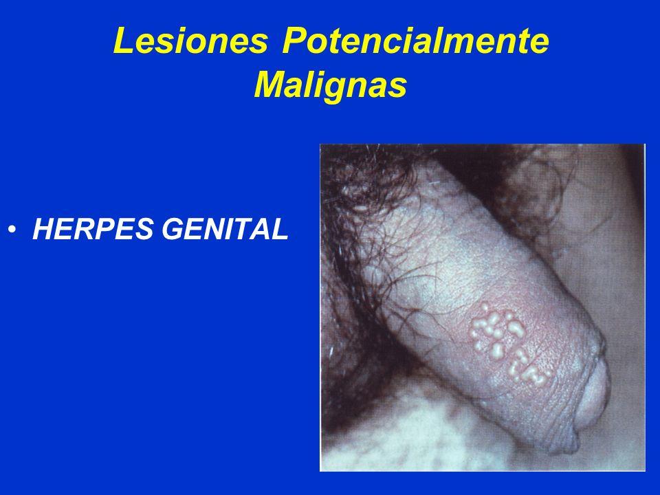 Lesiones Potencialmente Malignas CONDILOMATOSIS VPH ( 16)