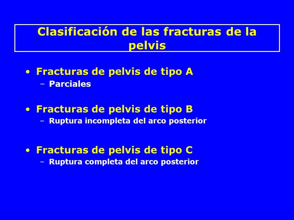 Abertura sacro-iliaca anterior y posterior