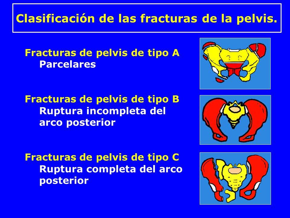 Fracturas de pelvis de tipo A Avulsión –Espinas iliacas Ant-Sup y Ant-Inf –Cresta iliaca –Isquion Traumatismo directo –Ala iliaca –Ramas pubianas Fractura de sacro