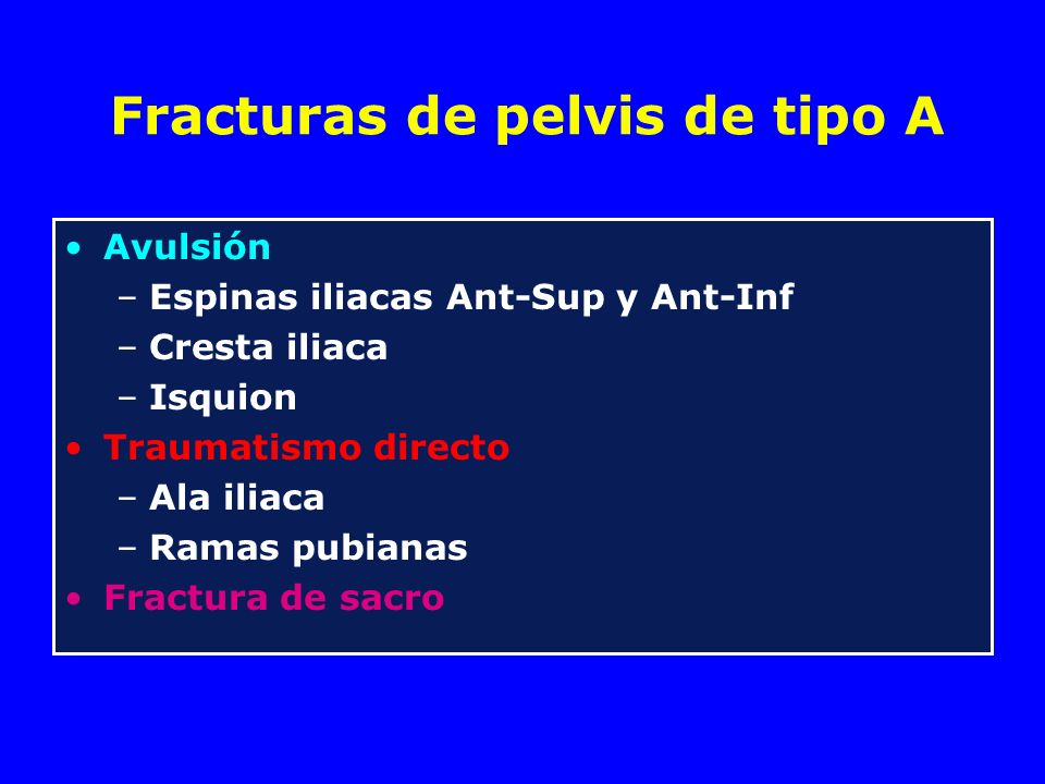 Fractura sacro-iliaca