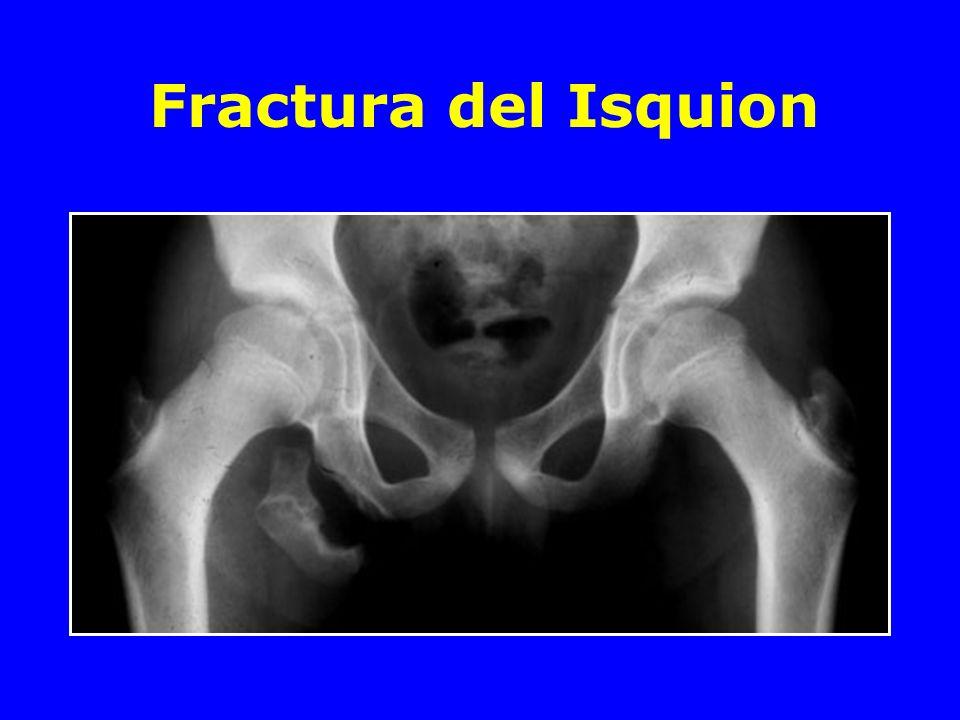 Fractura de pelvis asociada a una fractura acetabular Tracción