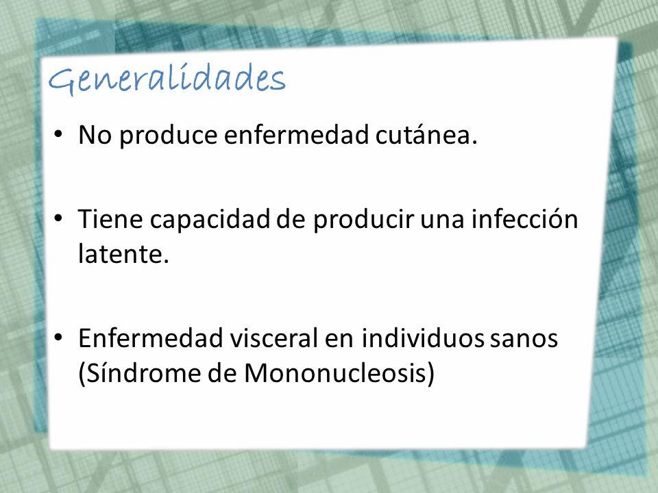 Inmunidad Monomucleosis infecciosa – Acs circulantes contra Ags virales específicos.