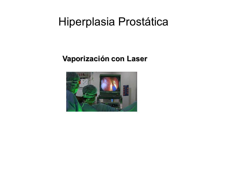 Vaporización con Laser Hiperplasia Prostática