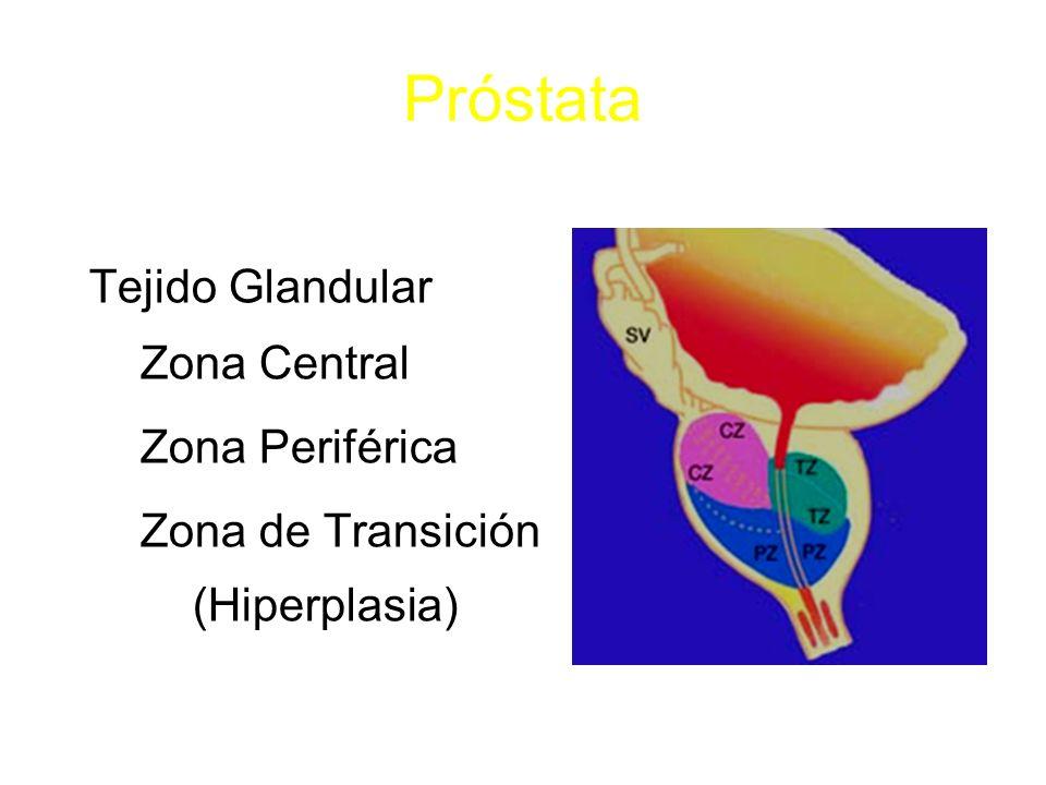 Próstata Tejido Glandular Zona Central Zona Periférica Zona de Transición (Hiperplasia)