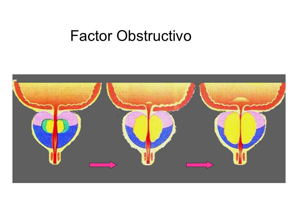 Factor Dinámico Tejido Fibromuscular Receptores 1 Fibras alfaadrenérgicas