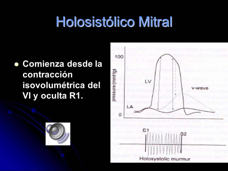 Holositólicos: IM Soplo holosistólico, en meseta, áspero. Se escucha mejor en el foco mitral y se irradia a la axila izquierda. R1 disminuido. A veces
