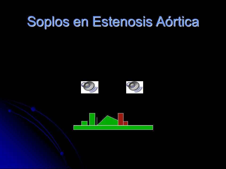 Estenosis Aórtica Es un soplo mesosistólico de eyección, de tono medio, áspero y romboidal. Se ausculta mejor en el foco aórtico. Se irradia con frecu