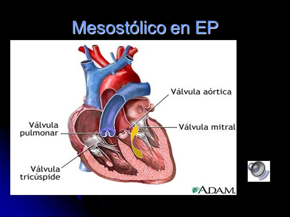Estenosis Pulmonar Soplo sistólico, eyectivo, romboidal, tono medio y seco. Se ausculta mejor sobre el foco pulmonar. R 2 disminuido y desdoblado.