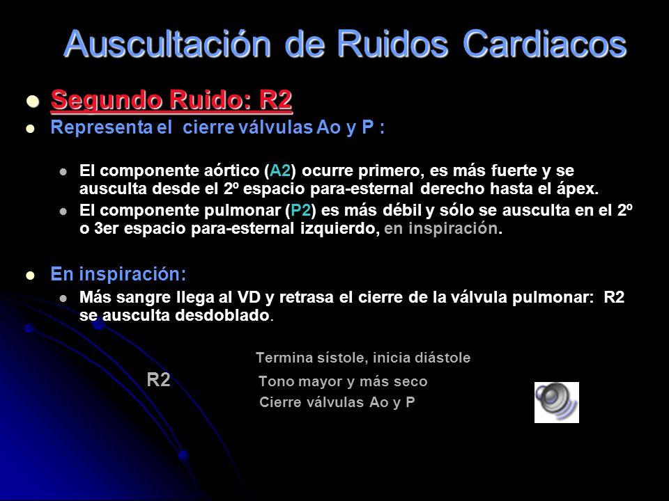 Primer Ruido: R1 Representa el cierre las válvulas AV Dura 0.14 seg., da comienzo a la sístole ventricular Su onomatopeya es Tom. Los dos componentes
