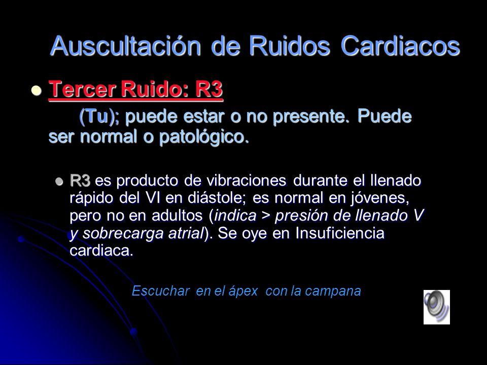 Segundo Ruido: R2 Segundo Ruido: R2 Representa el cierre válvulas Ao y P : El componente aórtico (A2) ocurre primero, es más fuerte y se ausculta desd
